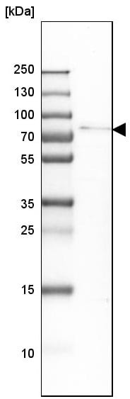 Western blot - Anti-LGN antibody (ab224238)