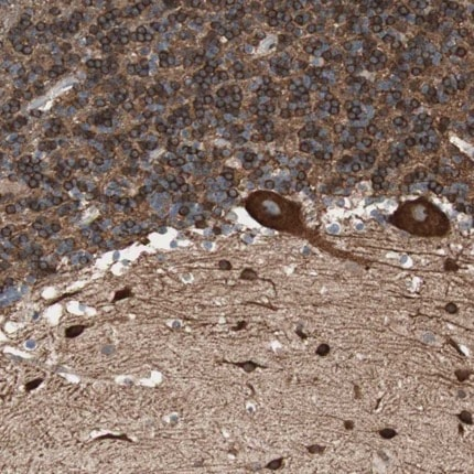 Immunohistochemistry (Formalin/PFA-fixed paraffin-embedded sections) - Anti-LGN antibody (ab224238)