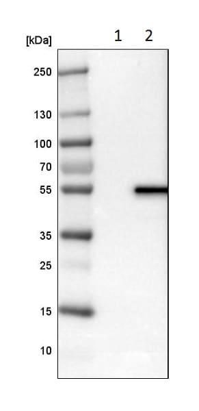 Western blot - Anti-LPCAT-2 antibody (ab224244)