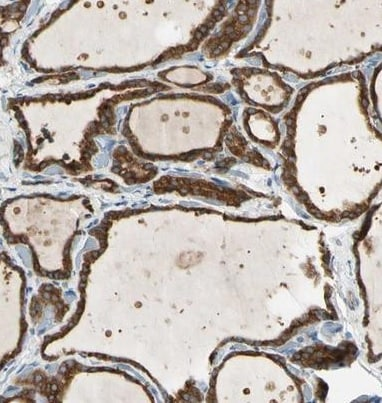 Immunohistochemistry (Formalin/PFA-fixed paraffin-embedded sections) - Anti-LPCAT-2 antibody (ab224244)