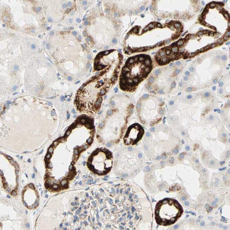 Immunohistochemistry (Formalin/PFA-fixed paraffin-embedded sections) - Anti-OXCT1/SCOT antibody (ab224250)