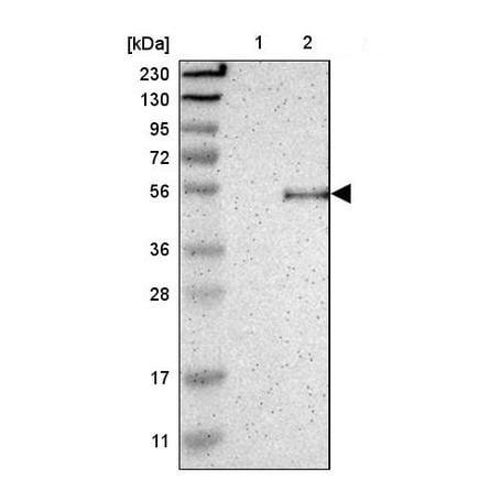 Western blot - Anti-Oligodendrocyte myelin glycoprotein antibody (ab224254)