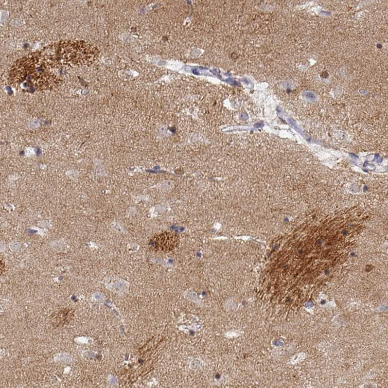 Immunohistochemistry (Formalin/PFA-fixed paraffin-embedded sections) - Anti-Oligodendrocyte myelin glycoprotein antibody (ab224254)