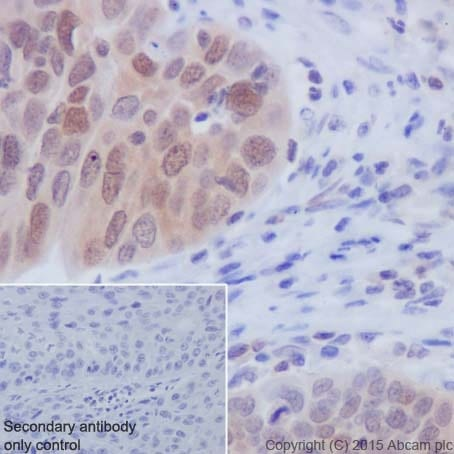 Immunohistochemistry (Formalin/PFA-fixed paraffin-embedded sections) - Anti-Caspase-3 antibody [EPR18297] - BSA and Azide free (ab224271)