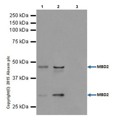 Immunoprecipitation - Anti-MBD2 antibody [EPR18361] - BSA and Azide free (ab224274)