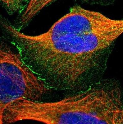 Immunocytochemistry/ Immunofluorescence - Anti-TJP2/ZO2 antibody (ab224314)