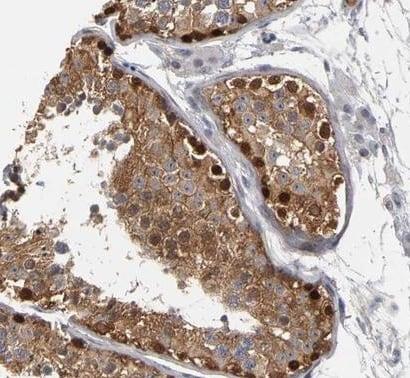 Immunohistochemistry (Formalin/PFA-fixed paraffin-embedded sections) - Anti-MAGEB1 antibody (ab224317)