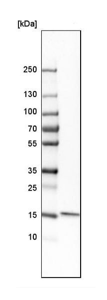 Western blot - Anti-GMFB antibody (ab224322)