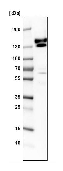 Western blot - Anti-Kinectin 1 antibody (ab224324)