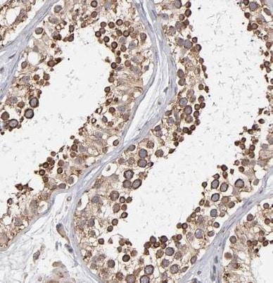 Immunohistochemistry (Formalin/PFA-fixed paraffin-embedded sections) - Anti-Kinectin 1 antibody (ab224324)
