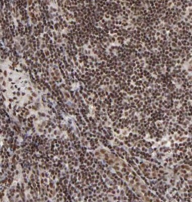 Immunohistochemistry (Formalin/PFA-fixed paraffin-embedded sections) - Anti-GABPA antibody (ab224325)