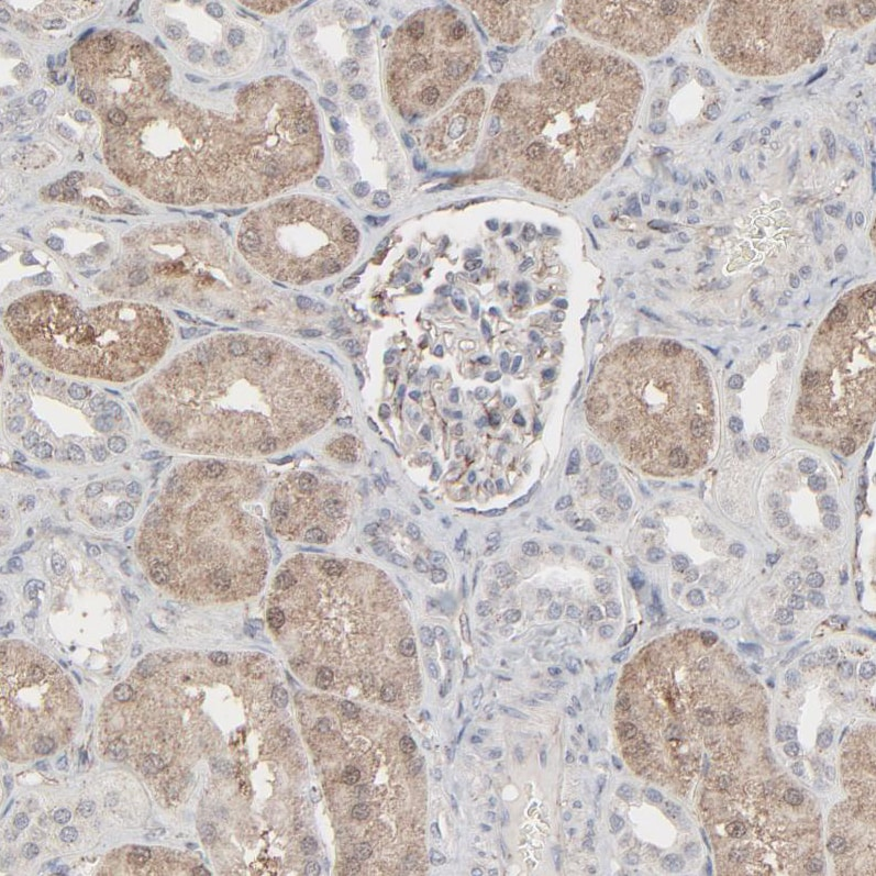 Immunohistochemistry (Formalin/PFA-fixed paraffin-embedded sections) - Anti-JAM-C antibody (ab224327)