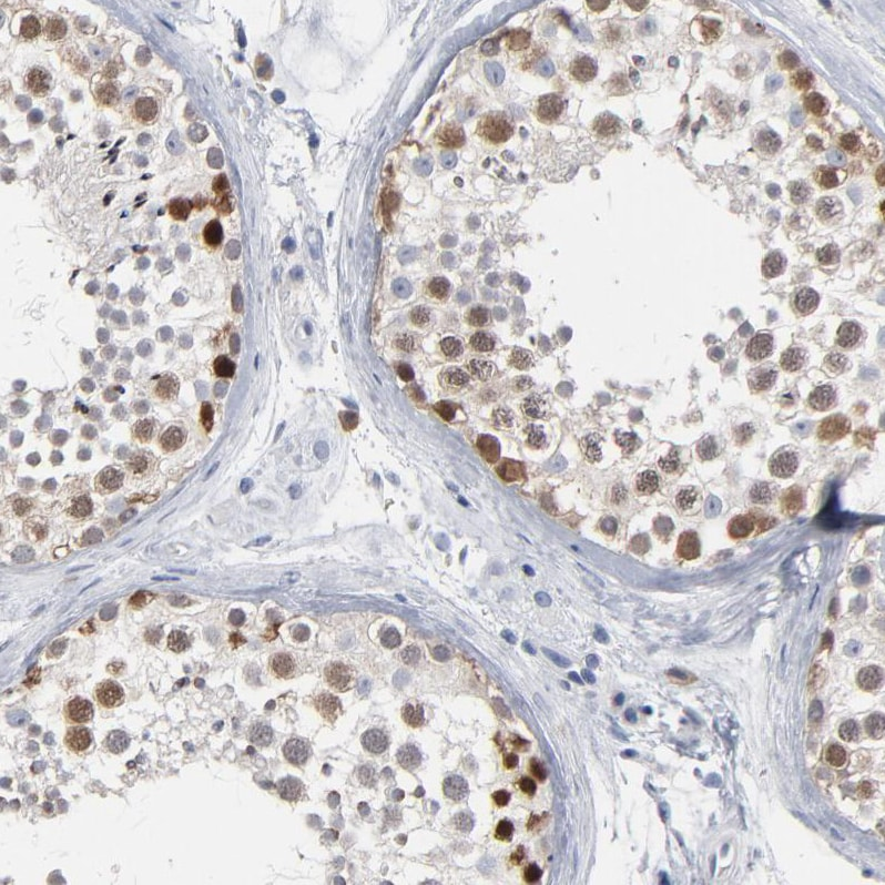 Immunohistochemistry (Formalin/PFA-fixed paraffin-embedded sections) - Anti-AL5 antibody (ab224329)