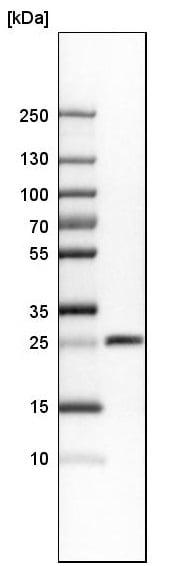 Western blot - Anti-SNRPN antibody (ab224330)