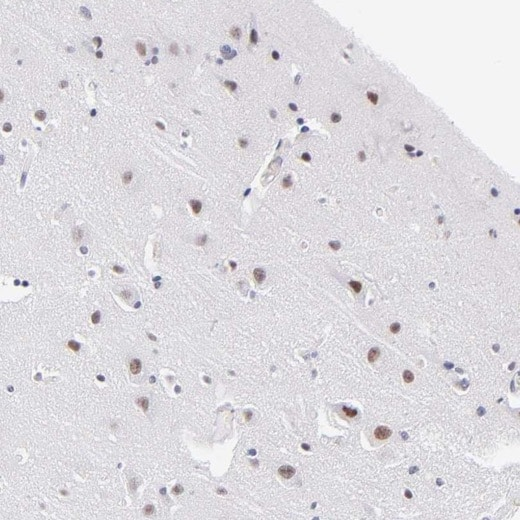 Immunohistochemistry (Formalin/PFA-fixed paraffin-embedded sections) - Anti-SNRPN antibody (ab224330)