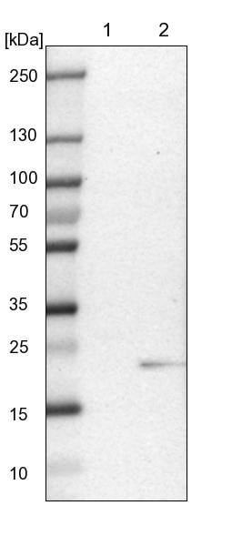 Western blot - Anti-DS-1 antibody (ab224333)