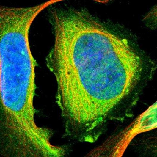 Immunocytochemistry/ Immunofluorescence - Anti-Filamin B antibody (ab224334)