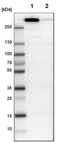 Western blot - Anti-Filamin B antibody (ab224334)