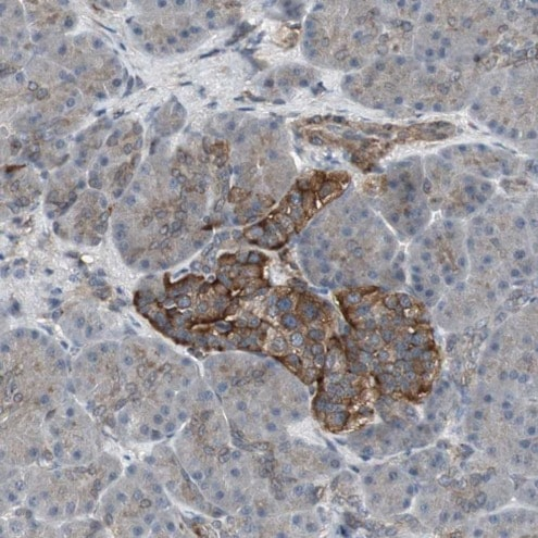 Immunohistochemistry (Formalin/PFA-fixed paraffin-embedded sections) - Anti-SCY1 like 3 antibody (ab224339)