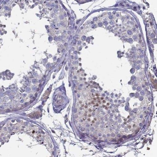 Immunohistochemistry (Formalin/PFA-fixed paraffin-embedded sections) - Anti-FoxJ1 antibody (ab224340)