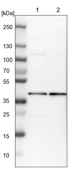 Western blot - Anti-MRPS22 antibody (ab224341)