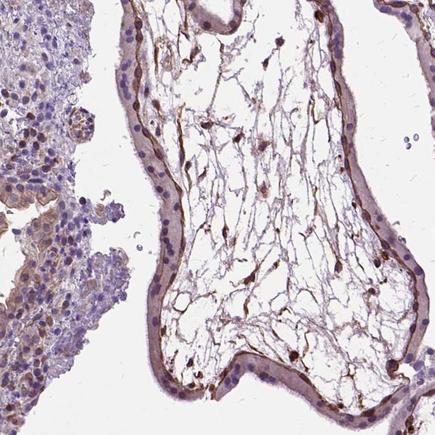 Immunohistochemistry (Formalin/PFA-fixed paraffin-embedded sections) - Anti-Amphiregulin antibody (ab224350)