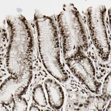 Immunohistochemistry (Formalin/PFA-fixed paraffin-embedded sections) - Anti-TSHZ3 antibody (ab224351)