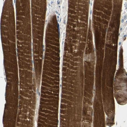 Immunohistochemistry (Formalin/PFA-fixed paraffin-embedded sections) - Anti-Tropomyosin 3 antibody (ab224355)