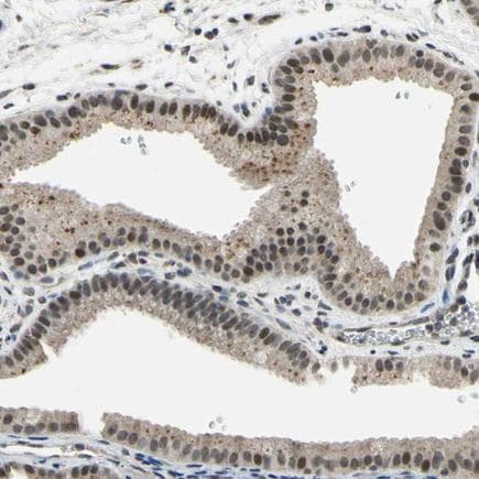 Immunohistochemistry (Formalin/PFA-fixed paraffin-embedded sections) - Anti-AW-1 antibody (ab224356)