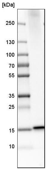 Western blot - Anti-MGST2 antibody (ab224359)