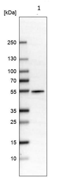 Western blot - Anti-ALDH9A1 antibody (ab224360)