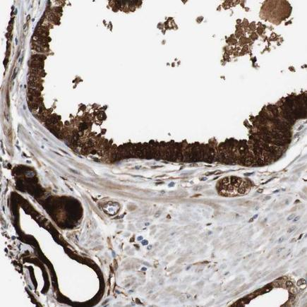 Immunohistochemistry (Formalin/PFA-fixed paraffin-embedded sections) - Anti-LXN/TCI antibody - N-terminal (ab224370)