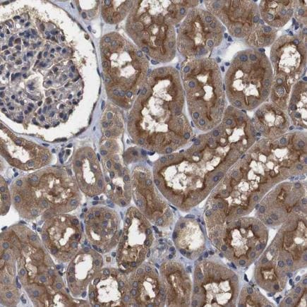 Immunohistochemistry (Formalin/PFA-fixed paraffin-embedded sections) - Anti-FILGAP antibody (ab224371)