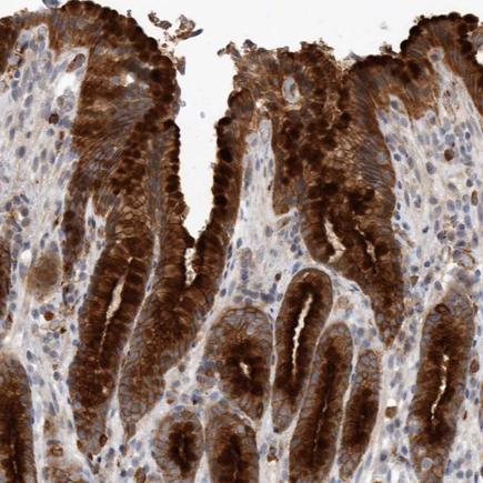 Immunohistochemistry (Formalin/PFA-fixed paraffin-embedded sections) - Anti-Melanophilin antibody (ab224373)