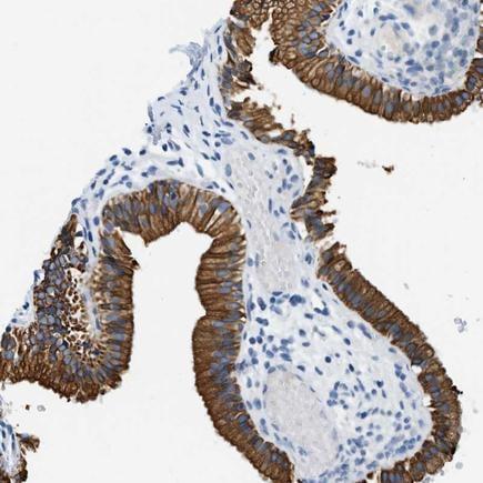 Immunohistochemistry (Formalin/PFA-fixed paraffin-embedded sections) - Anti-Munc18-2 antibody (ab224376)
