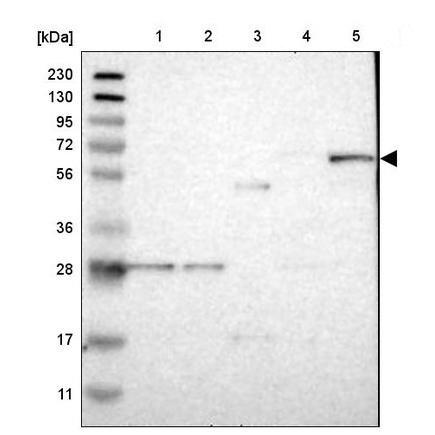 Western blot - Anti-CalDAG-GEFI antibody (ab224377)