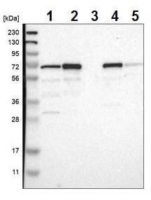 Western blot - Anti-PDLIM5/ENH antibody (ab224385)