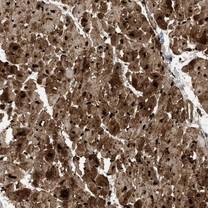 Immunohistochemistry (Formalin/PFA-fixed paraffin-embedded sections) - Anti-PDLIM5/ENH antibody (ab224385)