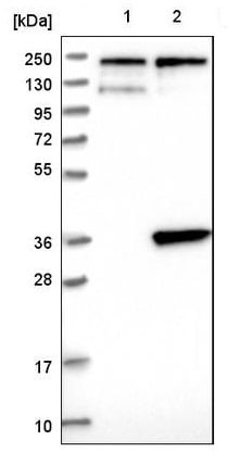 Western blot - Anti-SLC25A20 antibody (ab224388)