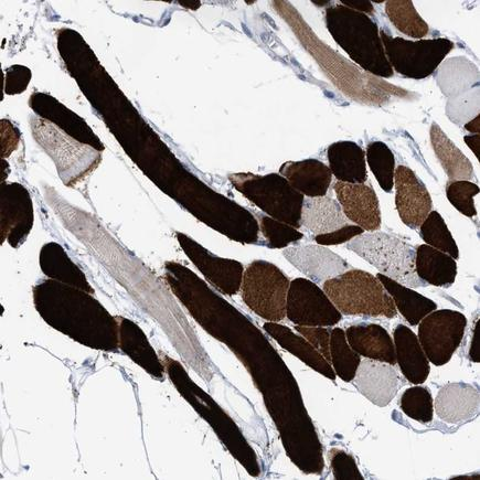 Immunohistochemistry (Formalin/PFA-fixed paraffin-embedded sections) - Anti-PDE6 alpha antibody (ab224389)