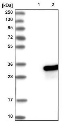 Western blot - Anti-RAB21 antibody (ab224390)