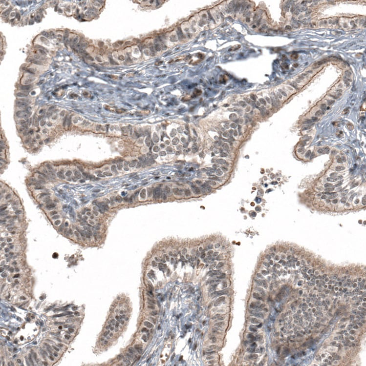 Immunohistochemistry (Formalin/PFA-fixed paraffin-embedded sections) - Anti-IL28RA antibody (ab224395)