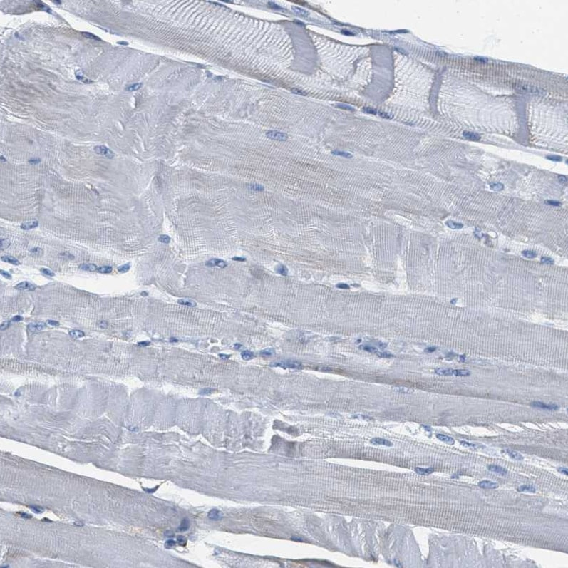 Immunohistochemistry (Formalin/PFA-fixed paraffin-embedded sections) - Anti-KCNJ5 antibody (ab224396)
