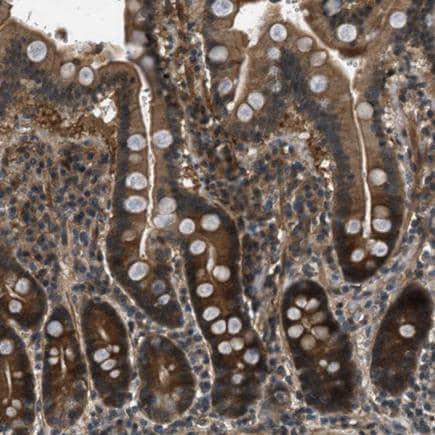 Immunohistochemistry (Formalin/PFA-fixed paraffin-embedded sections) - Anti-EPSTI1 antibody (ab224397)