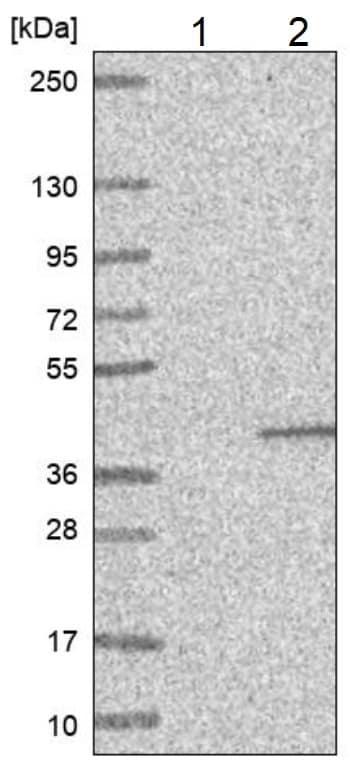 Western blot - Anti-ZnT-7 antibody (ab224405)