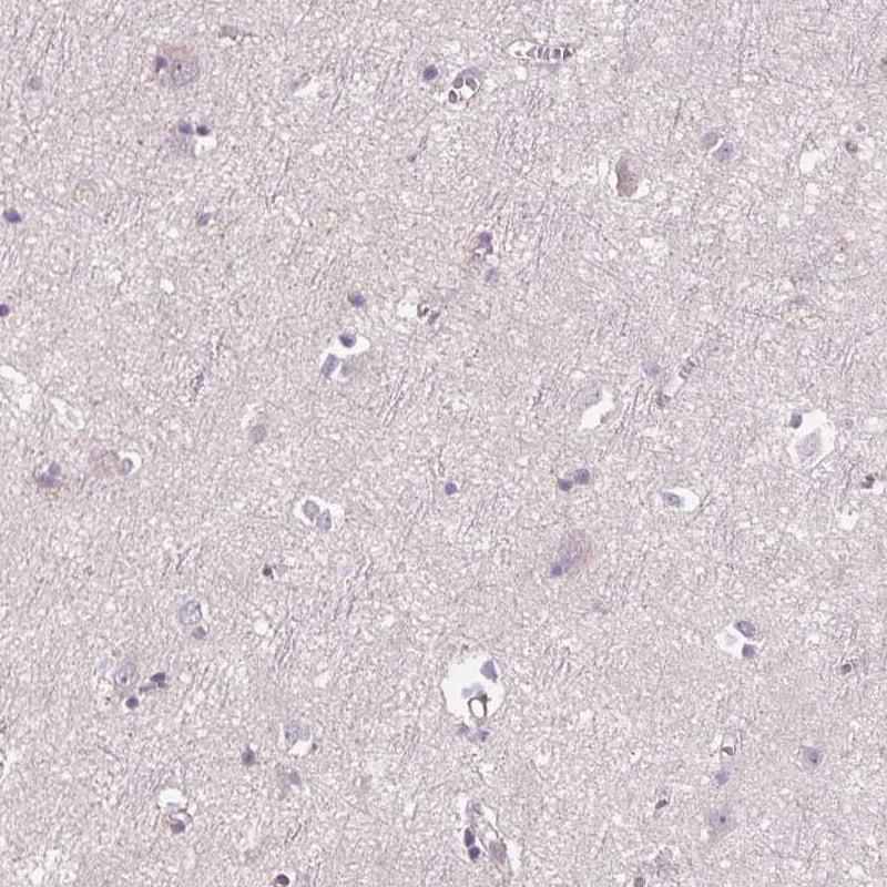 Immunohistochemistry (Formalin/PFA-fixed paraffin-embedded sections) - Anti-SIGLEC6 antibody (ab224406)