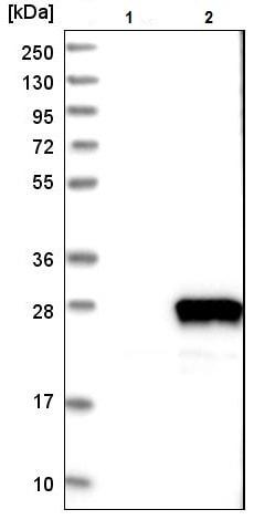 Western blot - Anti-RABL4 antibody (ab224408)