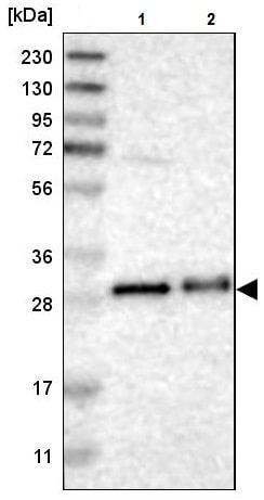 Western blot - Anti-TMED1 antibody (ab224411)