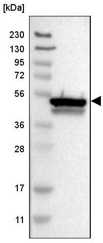 Western blot - Anti-CYB5R4/NCB5OR antibody (ab224412)