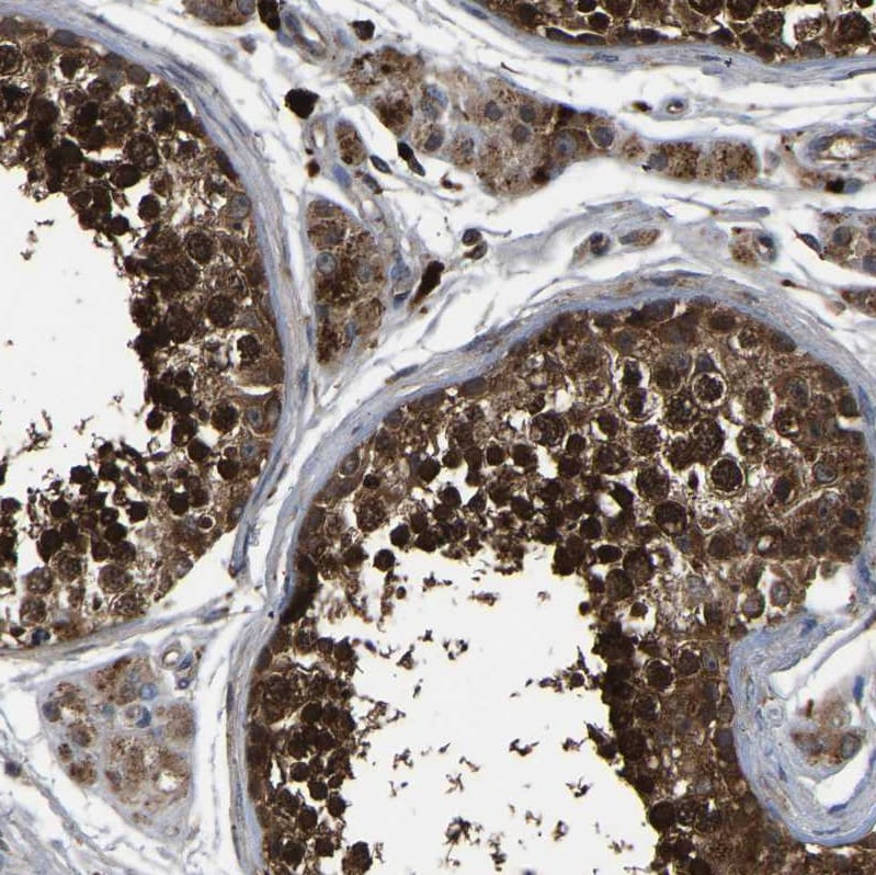 Immunohistochemistry (Formalin/PFA-fixed paraffin-embedded sections) - Anti-CRYZL1 antibody (ab224414)